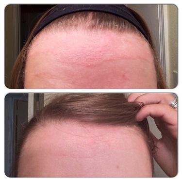 scalp-psoriasis-treatment
